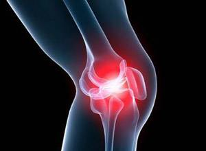коленный сустав при доа 2 степени