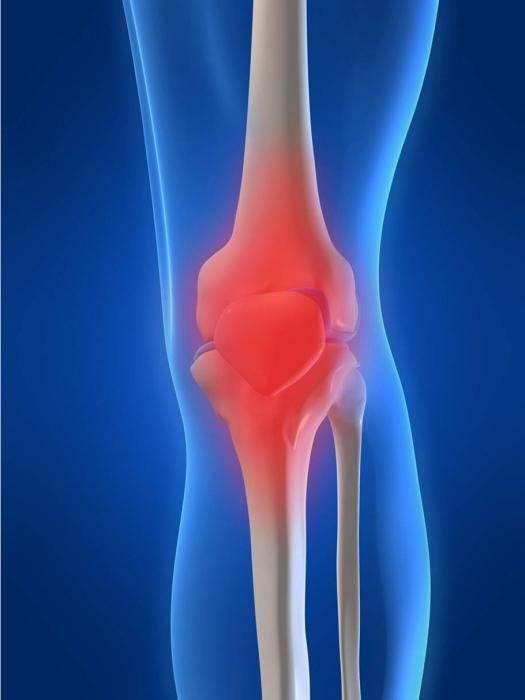 доа коленных суставов