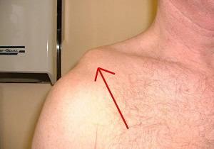 разрыв связок плечевого сустава