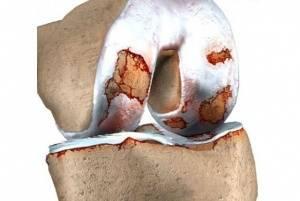 Артрит 3 степени коленного сустава — Суставы