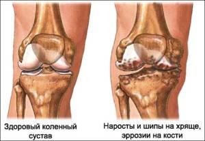 артроз коленного сустава степень