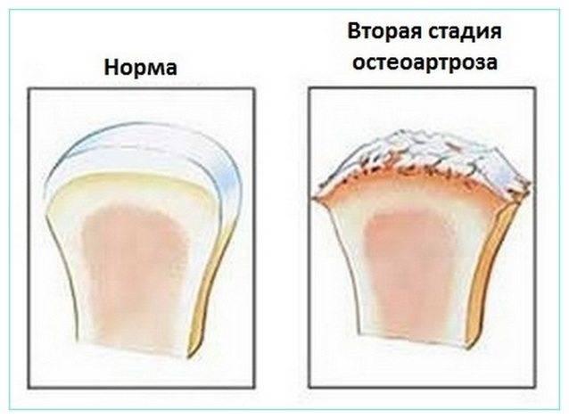 Остеоартроз колена 2 степени