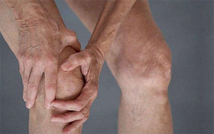 Колено пораженное остеоартрозом 2 степени