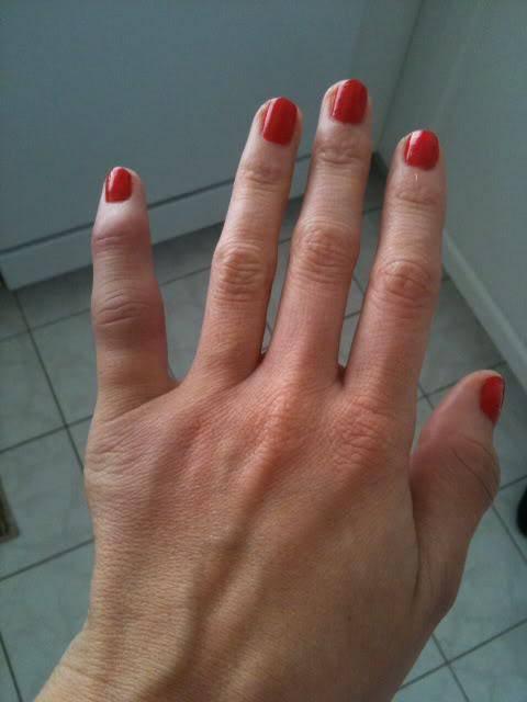 вывих пальца на руке что делать