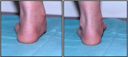 Растяжение связок голеностопа: лечение, как долго заживает, мази4