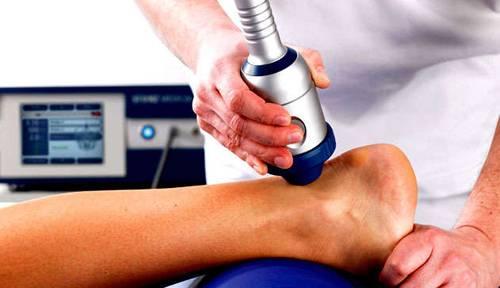 Растяжение связок голеностопа: лечение, как долго заживает, мази9