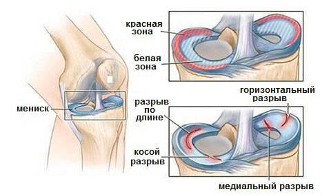 Травмы, вызывающие хруст и боли в коленях