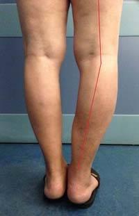 деформирующий остеоартроз коленного сустава 1 степени лечение