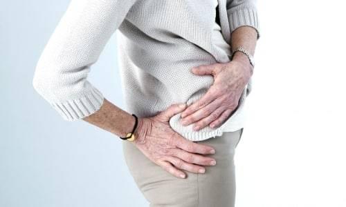 Проблема деформирующего артроза тазобедренного сустава 2 степени