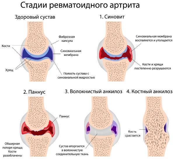 Артрит пальцев рук лечение - рекомендации процедуры профилактика