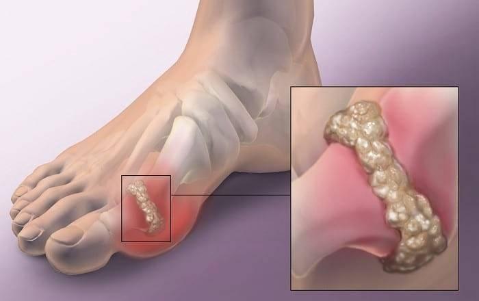 Как снять приступ подагры на ноге