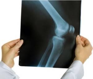 лигаментит коленного сустава