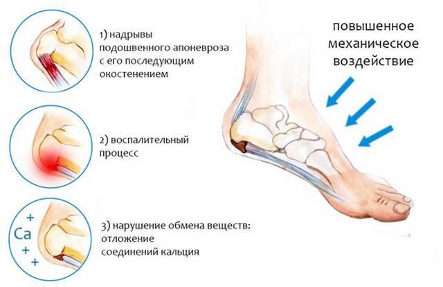 3720816_Pyatochnaya_shpora8 (640x414, 57Kb)