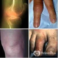 Реактивный артрит является воспалительным процессом в суставе