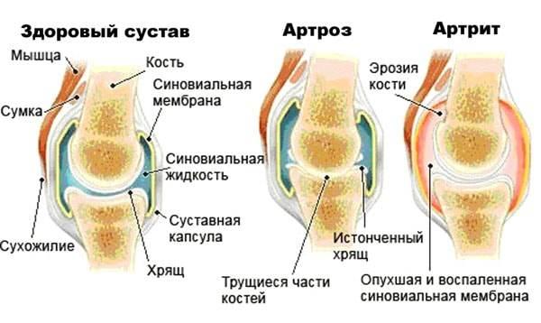 Артроз и остеохондроз отличия
