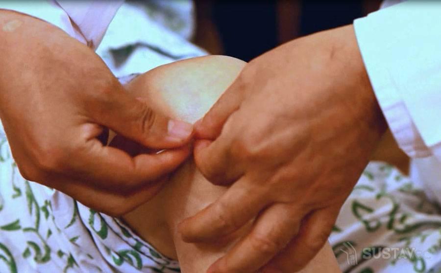 Лечение без операции разрыва мениска коленного сустава: проверенные методики 23-2