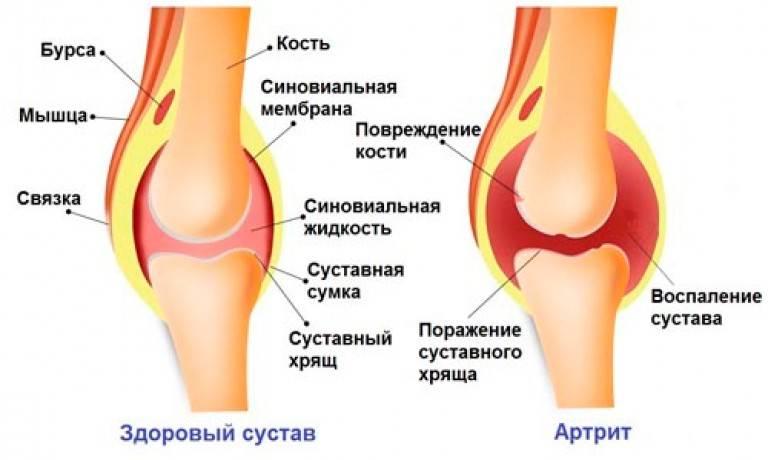 Лекарства от артрита коленного сустава