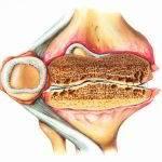 Схематичное изображение разреза коленного сустава с артритом третей стадии