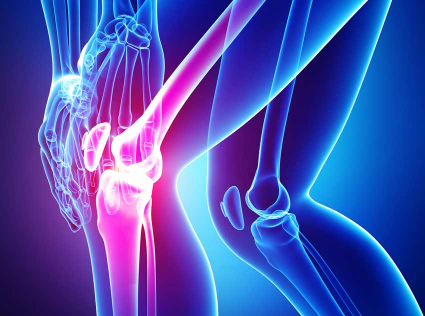 Отличия артрита коленного сустава от артроза