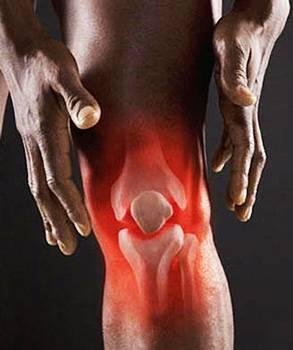 Третья степень артрита коленного сустава