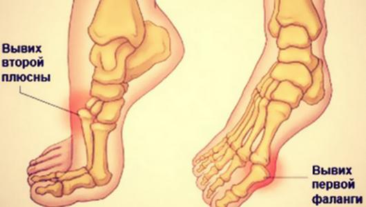 Классификация вывихов ноги