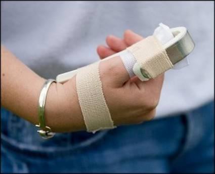 Изображение - Как лечить ушиб сустава пальца руки 5aaa1cffb4dcb5aaa1cffb4e28