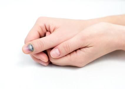Изображение - Как лечить ушиб сустава пальца руки 5aaa1cffc63ae5aaa1cffc63f4