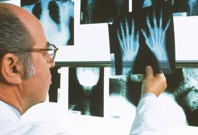 Доктор осматривает рентгеновские снимки