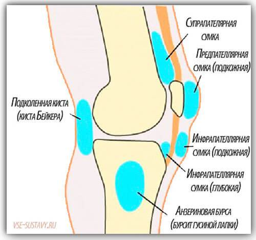 Bursit-kolennogo-sustava-vidy