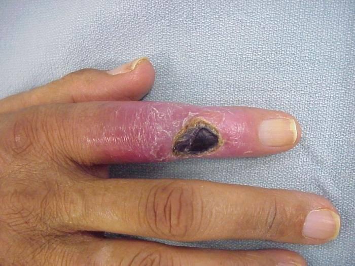 боль в суставе указательного пальца