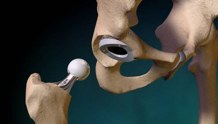 2087133120Hip Replacement