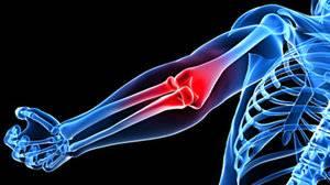 Изображение - Болят локтевые суставы лечение 5ac89fc76164c5ac89fc76167a