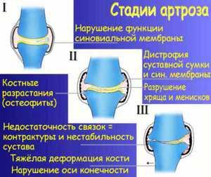 Изображение - Болят локтевые суставы лечение 5ac89fc7cdc975ac89fc7cdcde