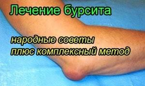 Изображение - Болят локтевые суставы лечение 5ac89fc7e761b5ac89fc7e7665