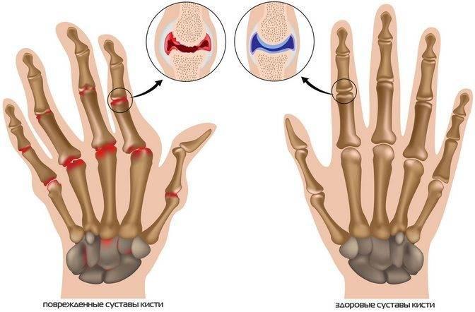 Лечение артрита пальцев рук народными средствами