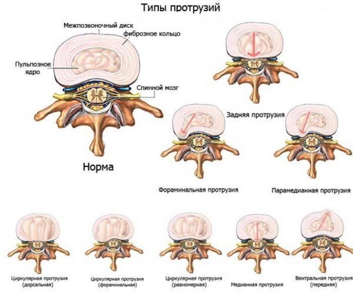 Симптомы протузий шейного позвонка