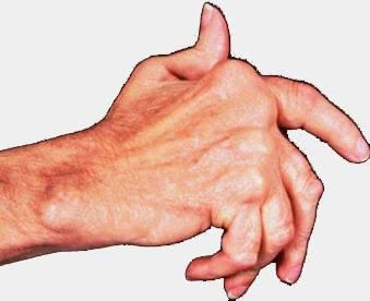 Ревматоидный артрит кисти