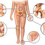дегенеративно дистрофические заболевания суставов