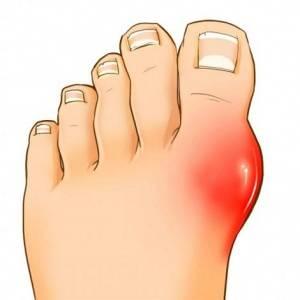Какие существуют методы лечения артрита пальцев ног
