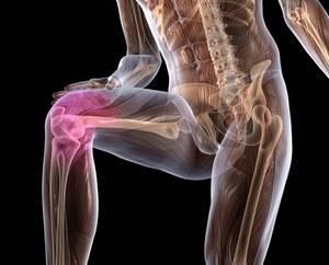 Лечение артроза - что делать при болях в коленях