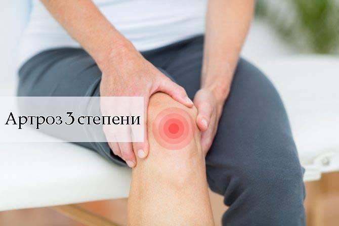 Артроз 3 степени лечение частые симптомы профилактика