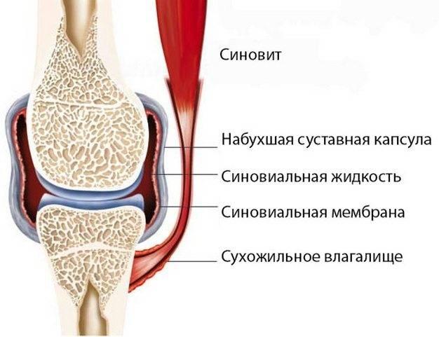 Синовит колена