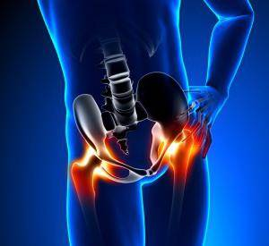 остеоартроз тазобедренного сустава симптомы
