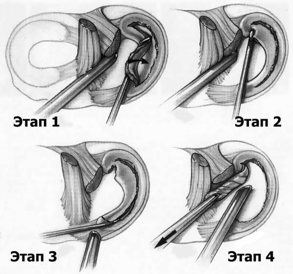 менискэктомия коленного сустава