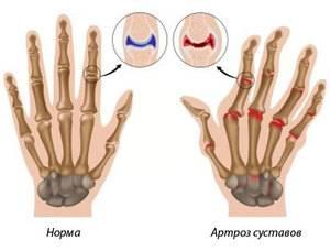 Артрит пальцев рук показан на фото