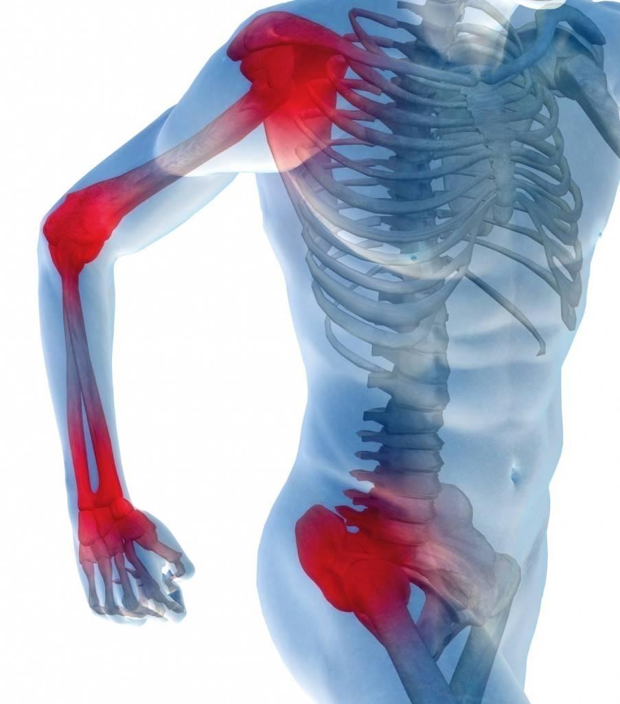 Мази при остеоартрозе