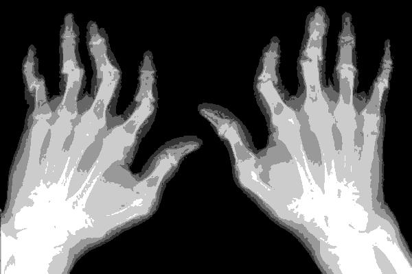 псориаз и суставы какая связь