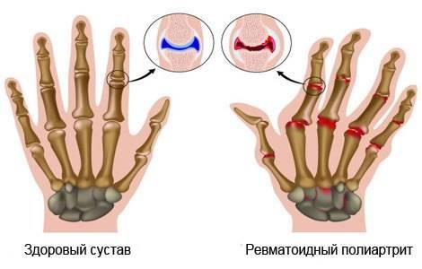 Отличие ревматоидного артрита от артрита