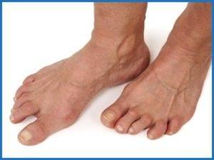 Советы по лечению остеоартроза стопы