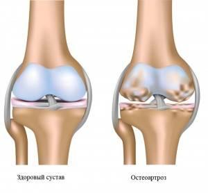 остеоартроза коленного сустава
